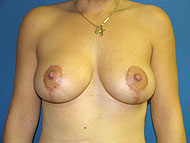 Breast Lift | Breast Reduction | New Jersey | Cherry Hill | Philadelphia