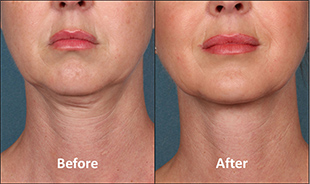 Kybella-Before-After-Thumb-1